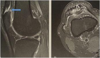 infiltration de cortisone au genou