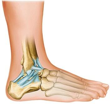 fracture ouverte genou
